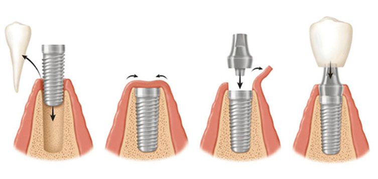 implantologia-studio-marconi