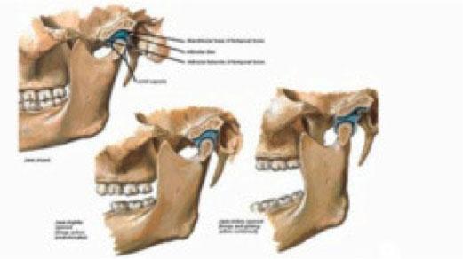 osteopatia2