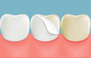 faccette dentali