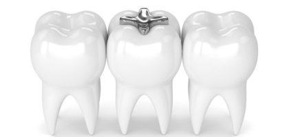 otturazioni dentali