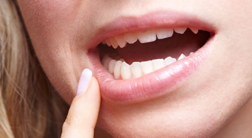 afte della bocca