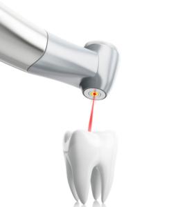Il laser in odontoiatria