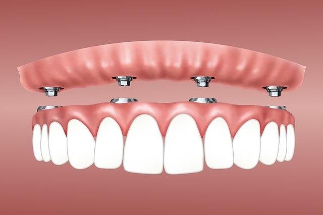 denti mancanti soluzioni