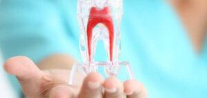 Endodonzia - Studio Dentistico Marconi