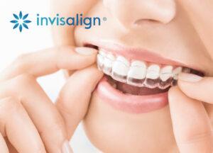 Invisalign - Studio Dentistico Marconi