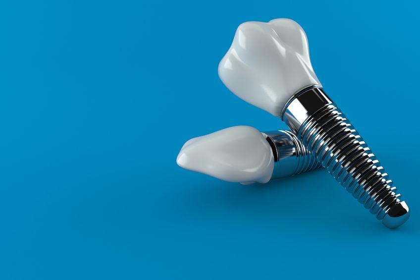 impianti dentali. La perimplantite