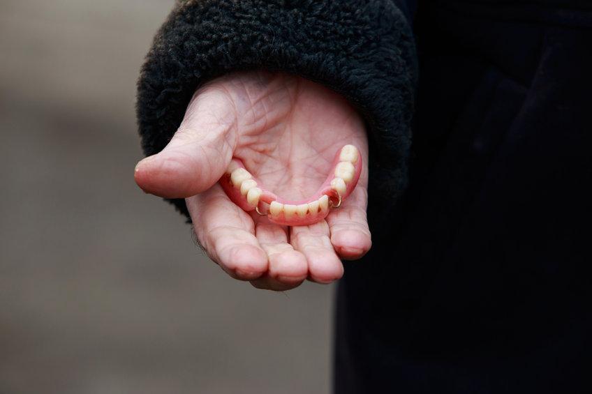 dentiera o impianto